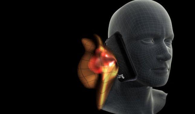 rceni - Cambios en el cráneo -por- uso -Smartphone -generan- un- nuevo- hueso-