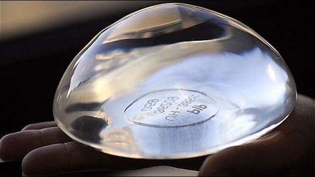 rceni - Implantes mamarios -vinculados- con -cáncer- son -retirados- en- todo-el -mundo-