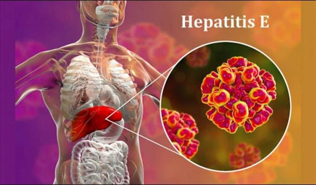 rceni - Nueva hepatitis E - de- las- ratas -contagian- a -personas- en- China -