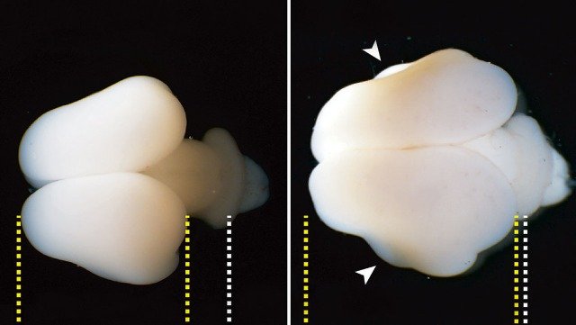 rceni - Fetos de titíes -insertan- gen- humano- y -logran- que -su- cerebro -aumente-
