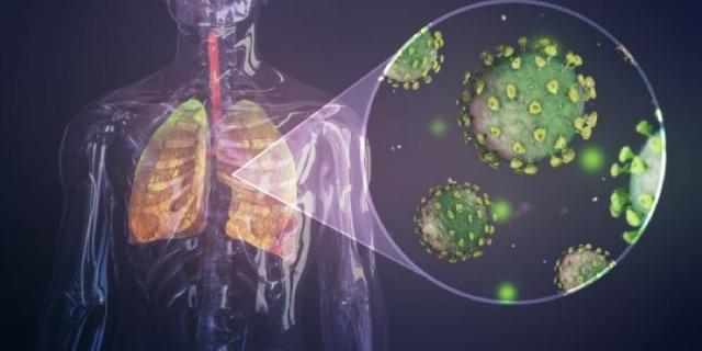 rceni - Pulmones - Identifican -daños- de- un -síndrome -conocido -como- covid -largo-