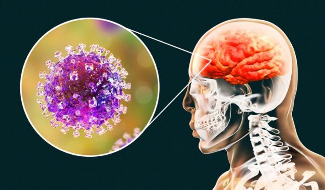 rceni - virus Nipah - de- Asia-- cientificos -luchan- para -evitar- nueva- pandemia-