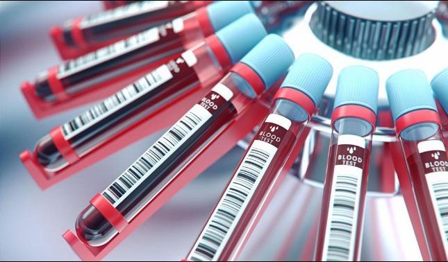 rceni - Análisis de sangre -para -detectar -indicios- de -cancer- comienza- en- UK-